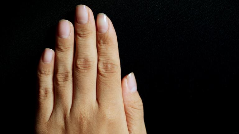 علامات على الأظافر تدل على نقص في الفيتامينات