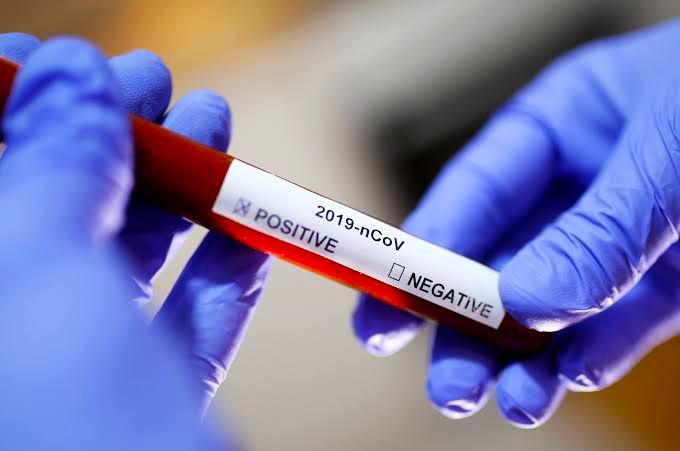 """ارتفاع معدل الإصابات بفيروس """"كورونا"""" في الشمال السوري"""